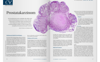 DFP-Literaturstudium: Prostatakarzinom