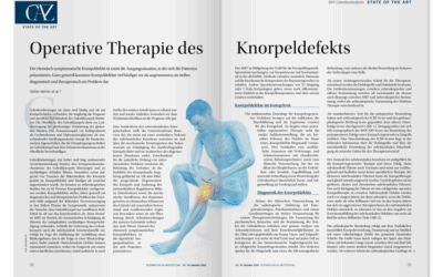 DFP-Literaturstudium: Operative Therapie des Knorpeldefekts